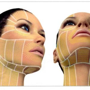 Ulthera-Facial-Thermal-Coagulation-Points-1-002