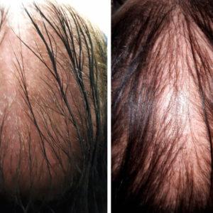 Hair_Filler_Results_BA1_14-05-2018